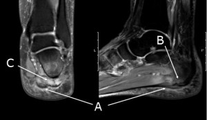 Plantar heel pain syndrome; Thickening of plantar fascia with intrasubstance signal (A), bone marrow oedema (B), intrinsic muscle oedema (C)